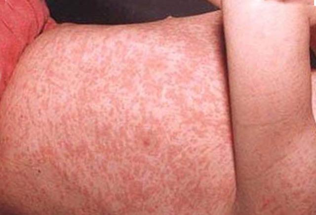 Краснуха у взрослых: симптомы, фото, лечение в домашних условиях, профилактика