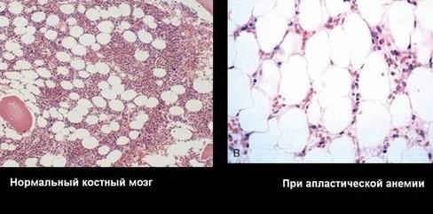 Апластическая анемия, что это? Лечение, прогноз для жизни