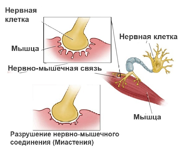 Миастения: что это такое, симптомы и причины возникновения миастении