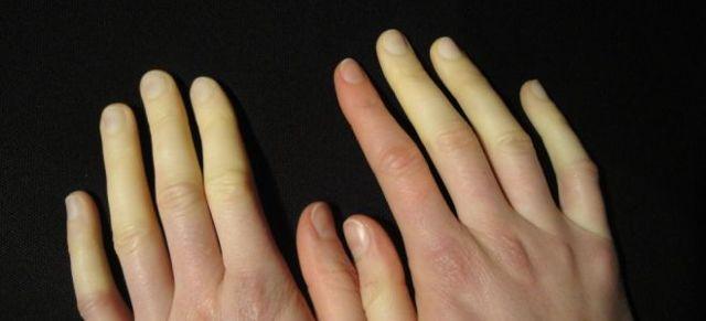 Болезнь Рейно: что это такое (фото), симптомы у женщин и лечение