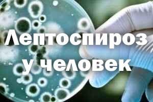 Лептоспироз у человека: симптомы, лечение, осложнения, прогноз