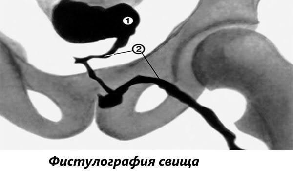 Свищ прямой кишки: фото, симптомы и лечение без операции