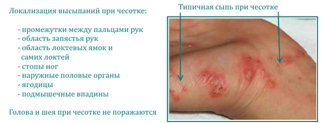 Чесотка: фото, симптомы. Как лечить чесотку в домашних условиях быстро за 1 день