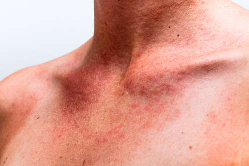 Фотосенсибилизация. Что это такое в медицине, симптомы, чем опасна, как выглядит, как лечить при приеме антибиотиков. Фотосенсибилизаторы для фотодинамической терапии кожи