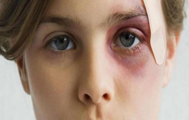 Средство от синяков и гематом на лице, под глазами от удара, после уколов у детей и взрослых. Быстродействующие мази, лучшие народные рецепты в домашних условиях