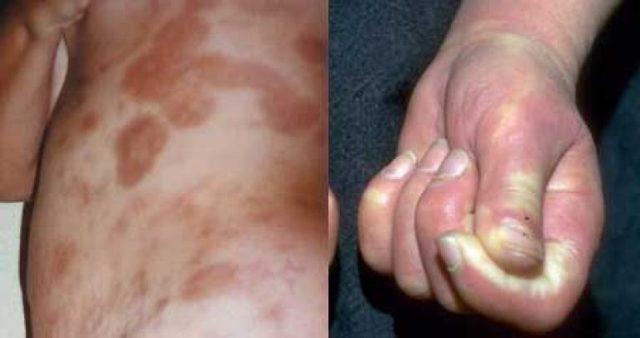 Склеродермия: признаки, фото, лечение, причины