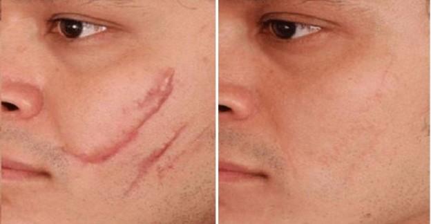 Шлифовка шрамов лазером. Фото до и после процедуры, результаты