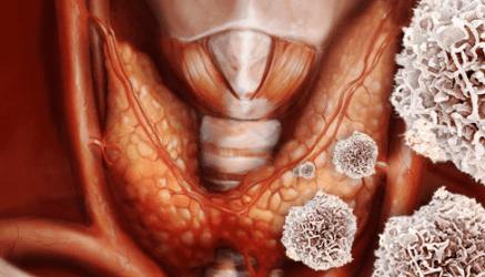 Аутоиммунный тиреоидит: симптомы, диета и образ жизни. Что ожидать - прогноз для жизни