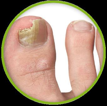 Чем лечить грибок ногтей на ногах: ТОП 5 самых эффективных препаратов для лечения грибка