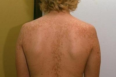 Отрубевидный лишай у человека: фото, симптомы и лечение за 1 день