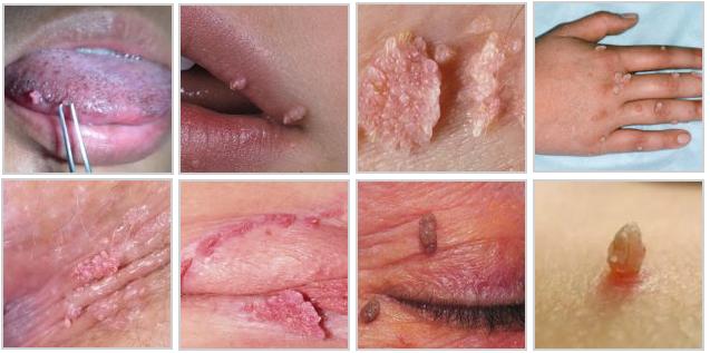 Остроконечные кондиломы у женщин. Фото на шее, во рту, внутри. Причины, стадии, анализы и лечение