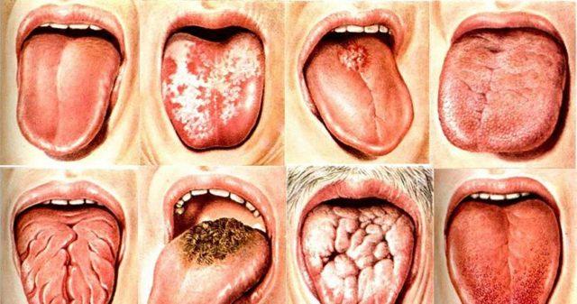 Глоссит у взрослых: симптомы и лечение, фото глоссита языка