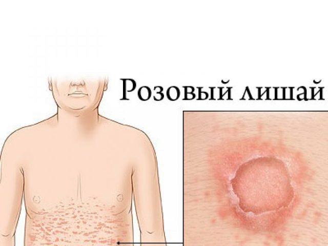 Розовый лишай у человека: симптомы, фото, лечение в домашних условиях