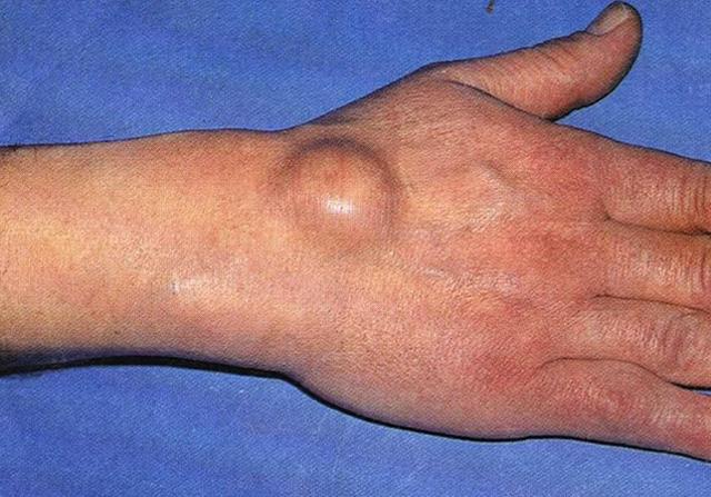 Шишка на кисти руки под кожей. Что это, фото гигромы, мягкая, твердая, при сгибании, как кость на внешней, внутренней стороне, лечение