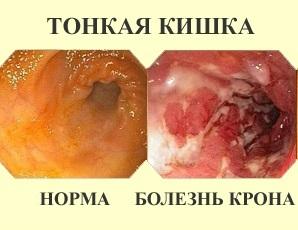 Болезнь Крона - что это такое? Симптомы и лечение у взрослых, фото