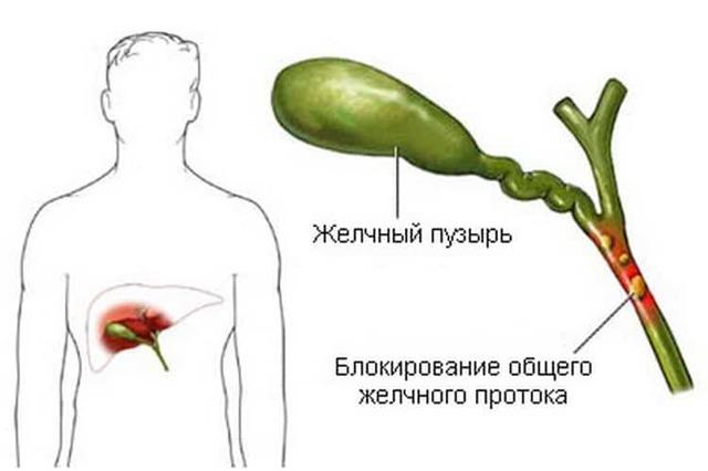 Холангит, что это такое? Симптомы и схема лечения в домашних условиях