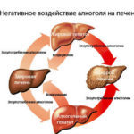 Алкогольный гепатит: симптомы и лечение, сколько с ним живут?