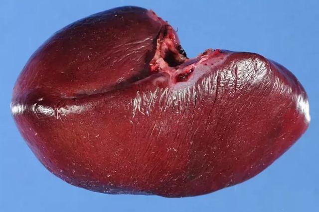 Селезенка. Где находится, как болит, симптомы, причины и лечение. Фото в организме, болезни у человека