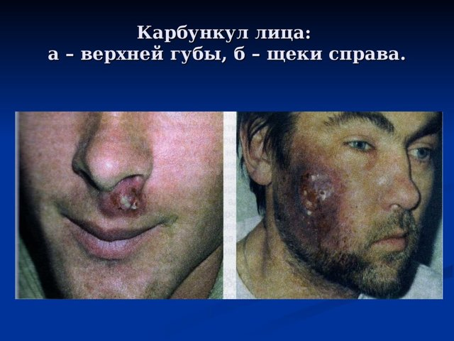 Карбункул: причины, лечение, фото. Чем лечить карбункул