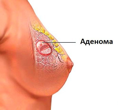 Аденома молочной железы, что это такое и как лечить? Причины, лечение, прогноз