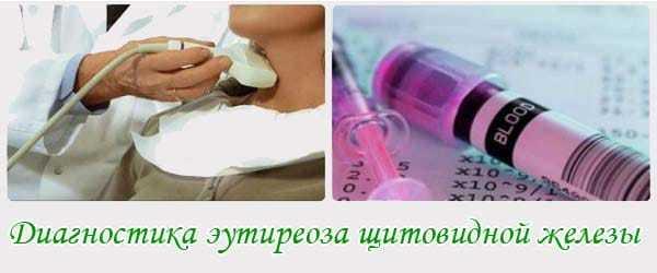 Эутиреоз щитовидной железы: что это, симптомы и лечение. народные средства