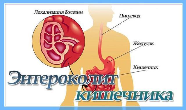 Энтероколит кишечника: симптомы у взрослых, лечение и прогноз