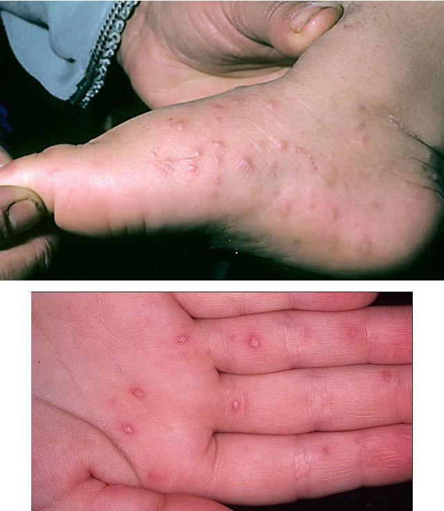 Болезнь Пузырчатка, что это? Симптомы, фото, лечение у взрослых и детей