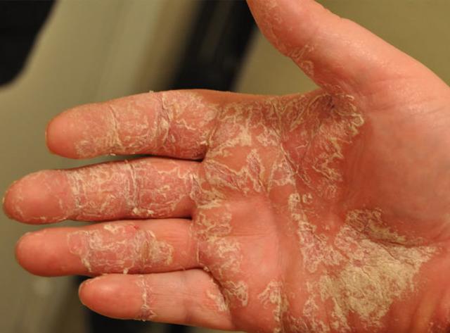Экзема на руках: фото, лечение и мази. Чем лечить экзему в домашних условиях
