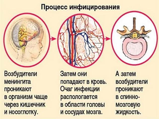 Минингитовая инфекция. Симптомы у взрослых. Фото вирусный, серозный, как передается, проявляется. Инкубационный период, лечение, последствия