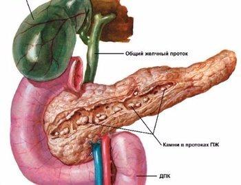 Камни в поджелудочной железе: лечение без операции, симптомы и причины образования