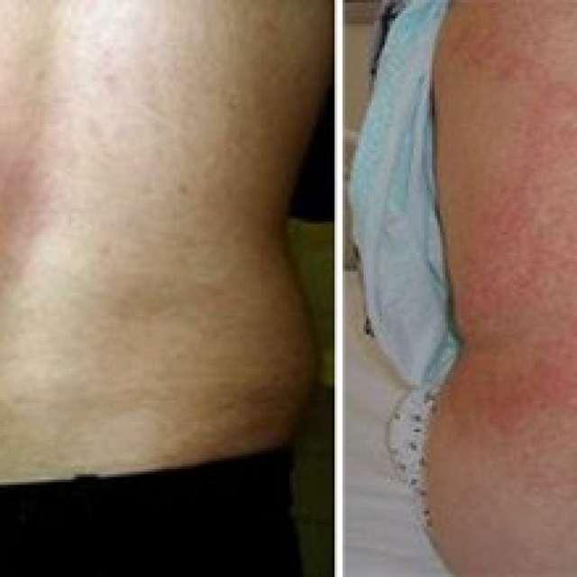 Бруцеллез: симптомы у человека, фото, признаки и лечение