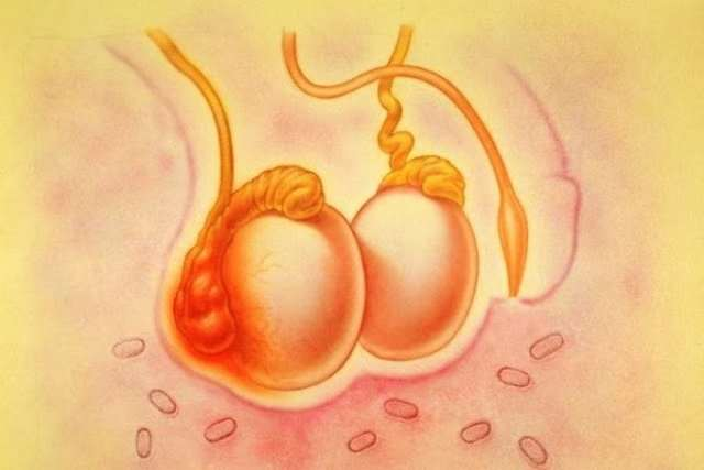 Орхит яичка у мужчин: симптомы и лечение воспаления яичка
