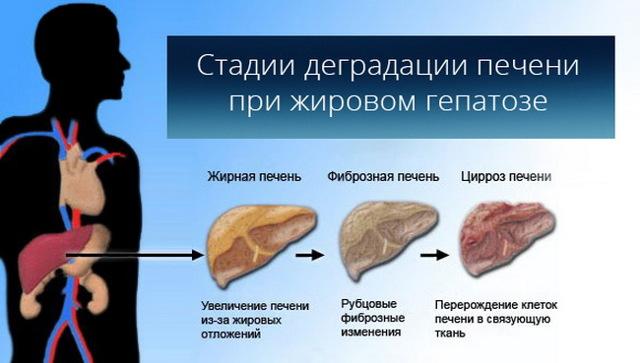 Ожирение печени, что это такое и как лечить: лекарства, питание и народные средства