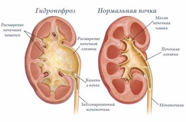 Как определить почечное давление: симптомы, причины и лечение у взрослых