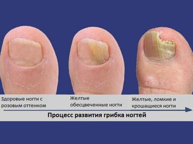 Размягчить ногти на ногах в домашних условиях у пожилых людей
