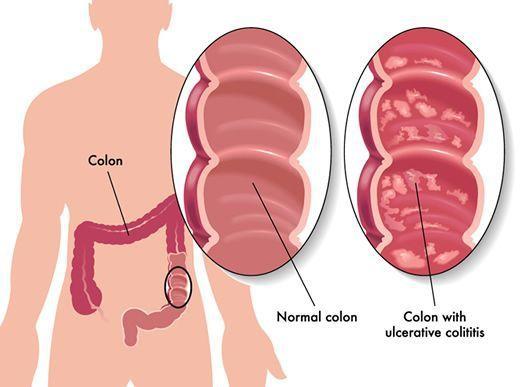 Неспецифический язвенный колит кишечника: симптомы, лечение у взрослых