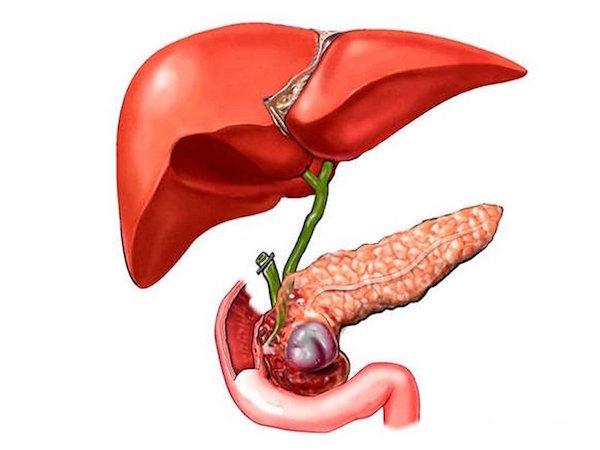 Желчнокаменная болезнь: симптомы, диета и лечение без операции