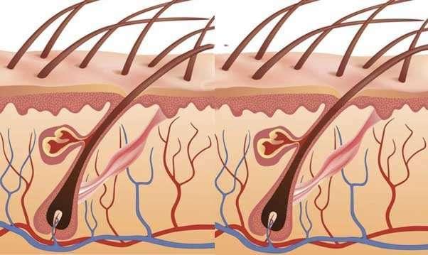 Чем лечить гидраденит под мышкой: фото, лечение и профилактика