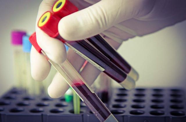 Почему С-реактивный белок повышен: ТОП 5 причин у взрослых