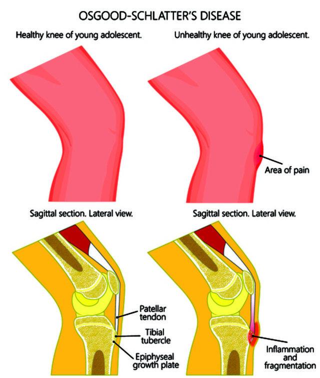 Болезнь Осгуда-Шлаттера: симптомы и лечение у подростков