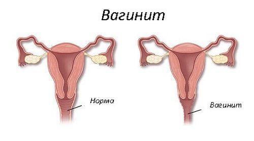 Вагинит при беременности: симптомы и особенности лечения