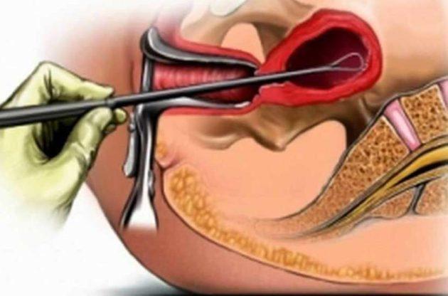 Хирургический аборт: как делают и сколько длиться операция, возможные осложнения