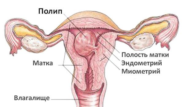 Железисто-фиброзный полип эндометрия: что это, причины появления, лечение