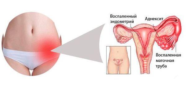 Проявление трихомонадного вагинита у женщин: диагностика, лечение