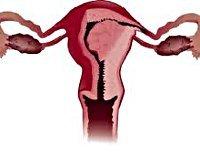 Рак матки: первые признаки, отдаленные симптомы, методы диагностики и лечения