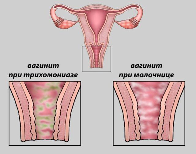 Симптомы, лечение и профилактика вагинита разных видов